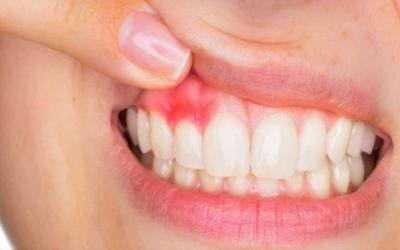 Previene la enfermedad periodontal – Dra. Arely Martín Navarro