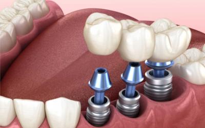 Cuida a tus adultos mayores de la pérdida parcial de su dentadura – Dra. Arely Martín Navarro