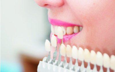 Carillas dentales, una opción para mejorar tu sonrisa – Dra. Arely Martín