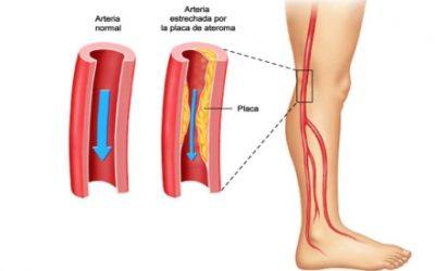 ¿Entumecimiento de las piernas ?  Enfermedad arterial periférica – Dr. Alejandro Nuricumbo