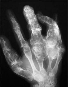 cáncer en los huesos