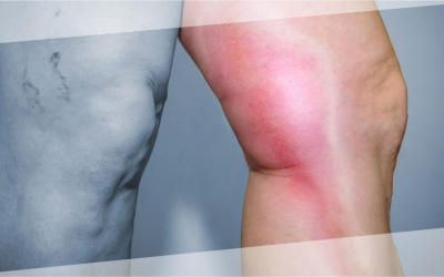 Trombosis venosa: Atiende el problema con un especialista – Dr. Alejandro Nuricumbo
